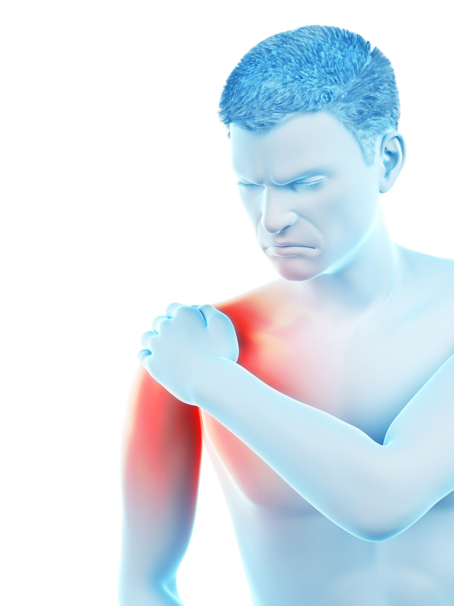 פציעות כתף, הסתיידות בכתף , דלקת בכתף, ניתוח קרע בגיד הכתף