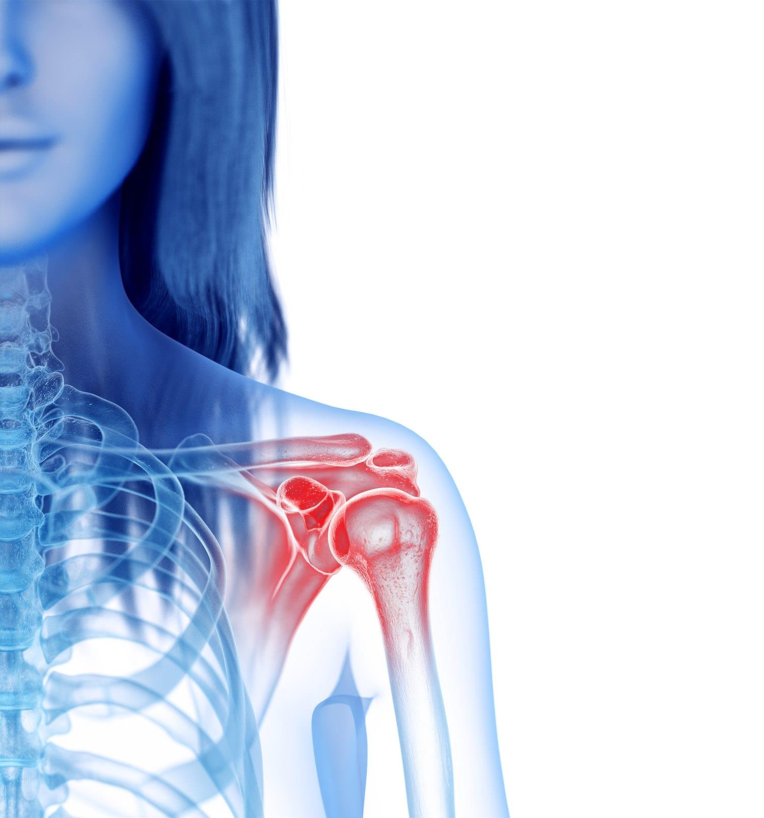 פתרון לקרע בכתף, דלקת בגיד הכתף, קרע בגיד הכתף