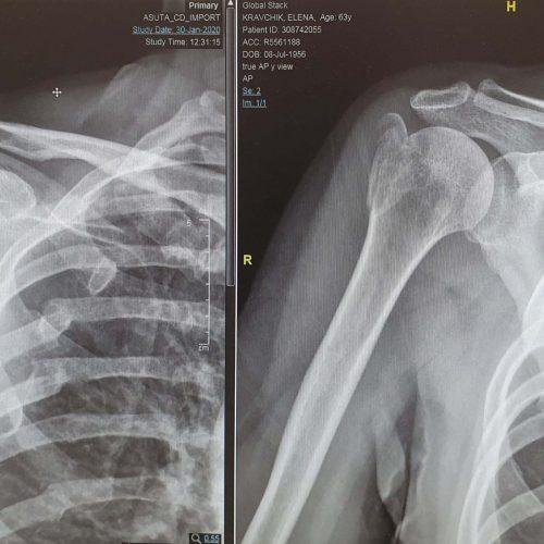 שבר בכתף