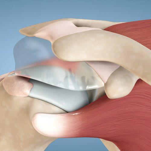 ניתוח בלון בכתף